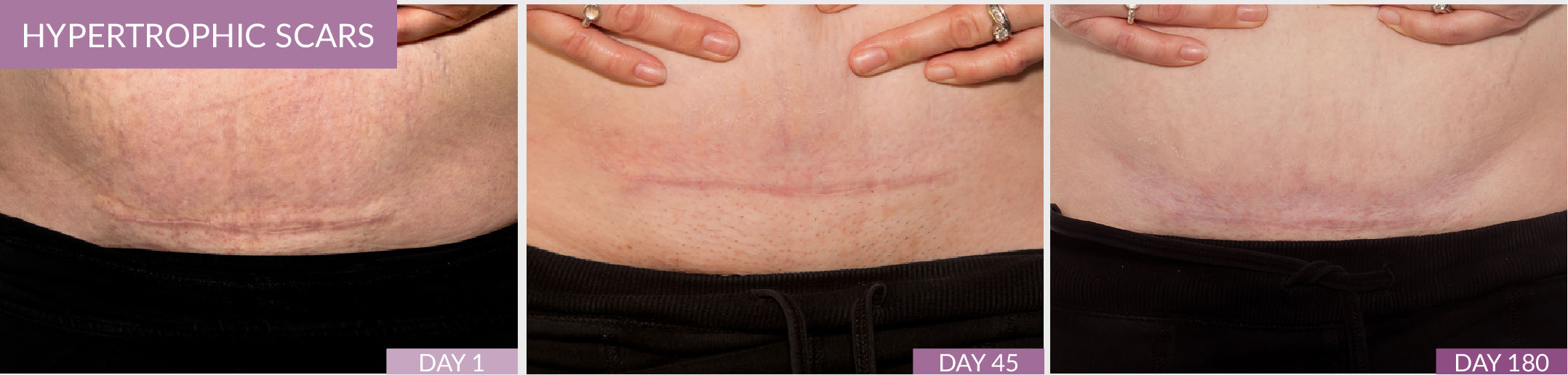 Hypertrophic Scars C-Section Scar Fusion Pharmacy