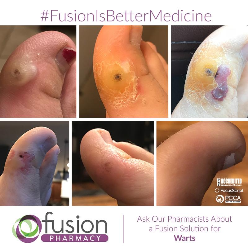 Warts Fusion Pharmacy
