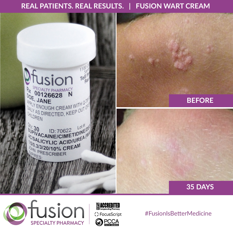 Fusion Pharmacy St. George Utah Wart Treatment