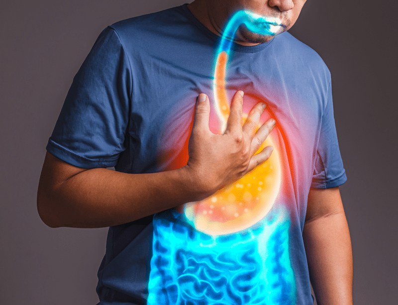 Almost 30 Years of Heartburn…GONE!